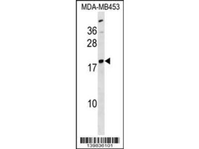 LYPLA1 Antibody (Center)