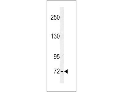 IL1RAPL2 Antibody (Center)