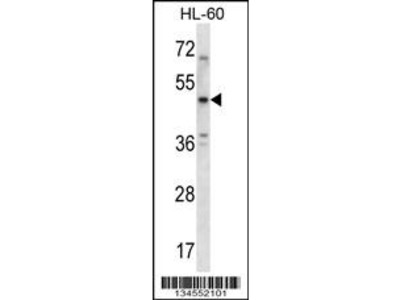 HTR1B Antibody (Center)