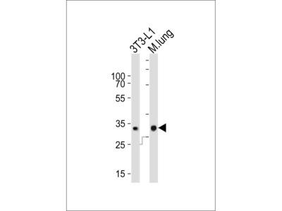 CHMP3 Antibody (N-term)