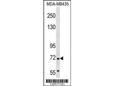 GRHL2 Antibody (Center)