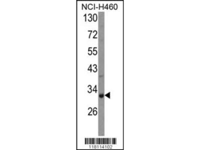 COMTD1 Antibody (C-term)