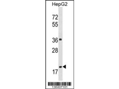 PPM1M Antibody (Center)