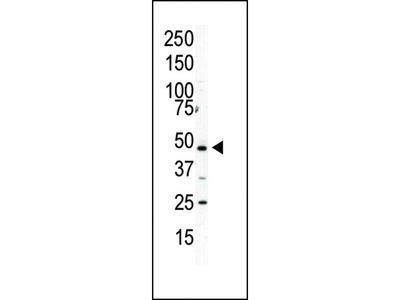 PIP5K2 Alpha (PIP5K2A) Antibody (C-term)