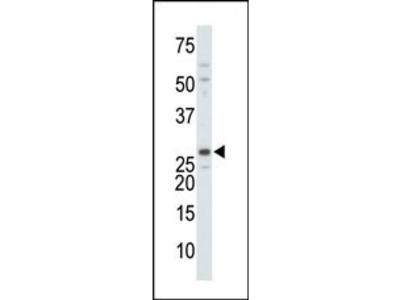 DTYMK Antibody (C-term)