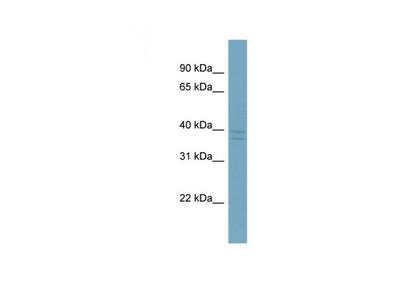 CXorf66 antibody