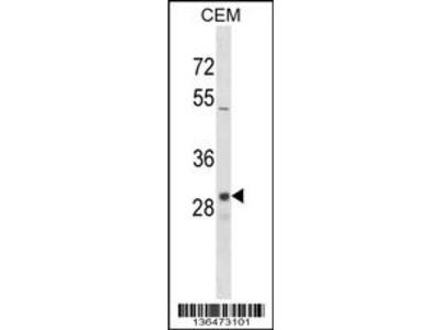 OR1D2 Antibody (C-term)