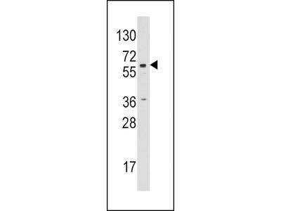Aromatase (CYP19A1) Antibody (C-term)