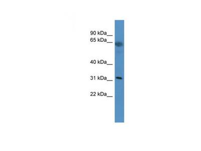 OR2T29 antibody