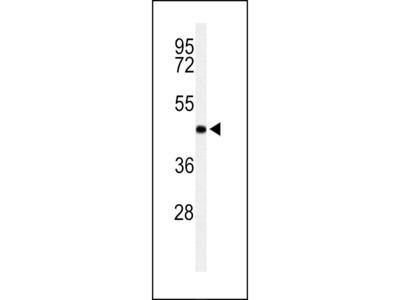 RPR1B Antibody (C-term)