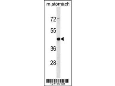 ARRDC1 Antibody (Center)