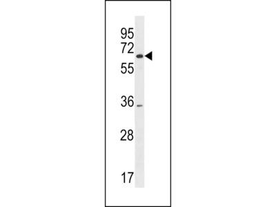 SRRM3 Antibody (Center)