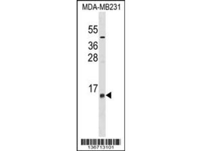 LST1 Antibody (Center)