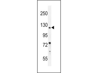 DDX11 Antibody (C-term)