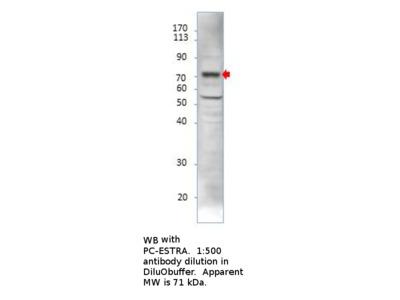 Estrogen Receptor alpha