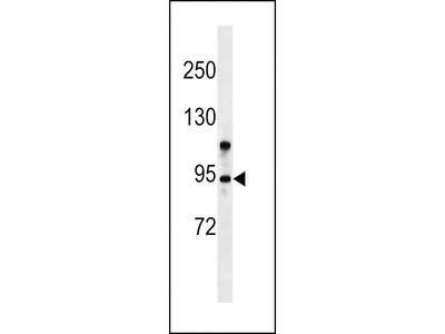 ZMYM6 Antibody (N-term)
