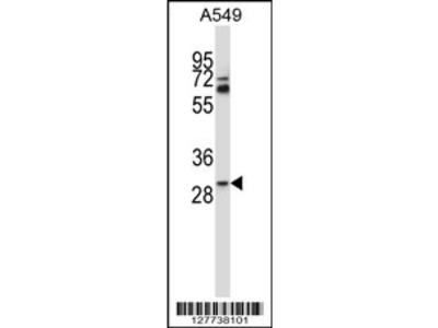 TATDN1 Antibody (Center)