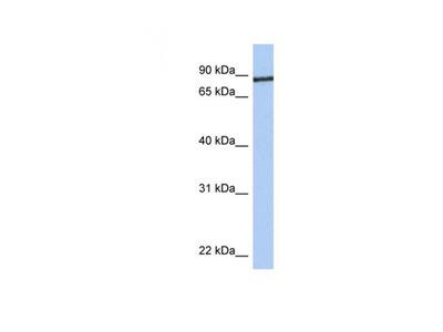 Junctophilin 1 antibody