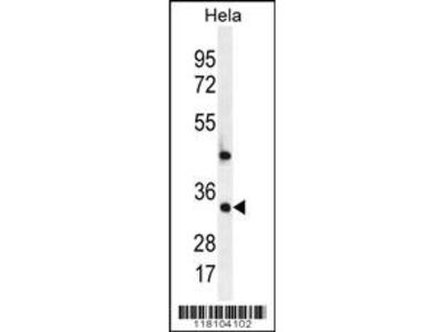 MED7 Antibody (Center)