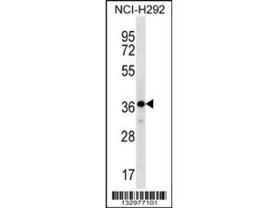 THAP8 Antibody (Center)