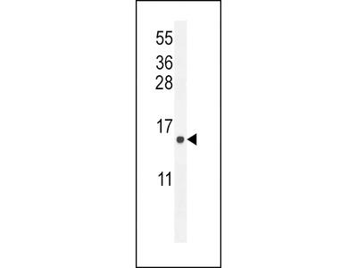 ATP6V0B Antibody (Center)