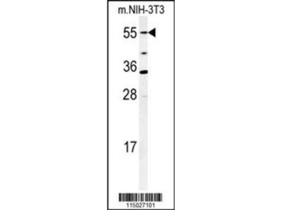 CYP26A1 Antibody (C-term)