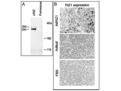 PRDM2 (RIZ1) Antibody