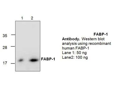 FABP1 Antibody