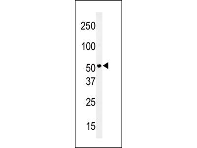 PMAT (Slc29a4) Antibody (N-term)