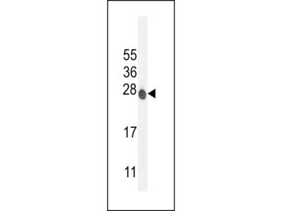 ATP6V0C Antibody (C-term)