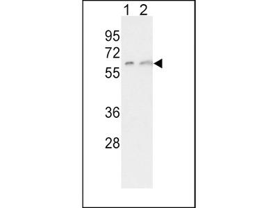 CYP7A1 Antibody (C-term)