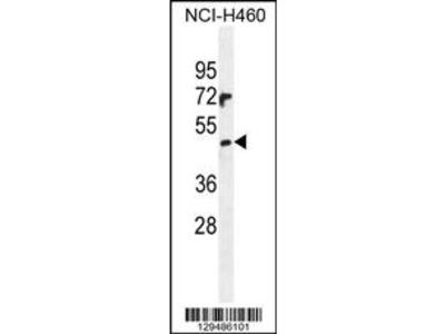 PRAMEF6 Antibody (C-term)