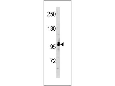 RUNDC2A Antibody (C-term)