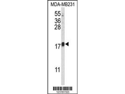 HRIHFB2025 Antibody (C-term)