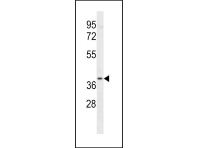 LTB4R2 Antibody (C-term)