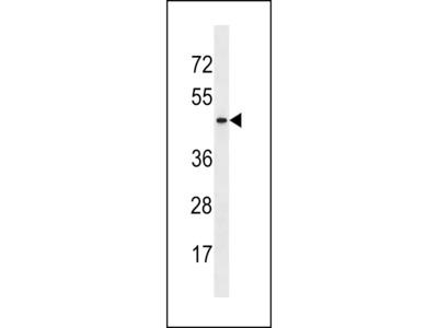 ARMCX4 Antibody (Center)