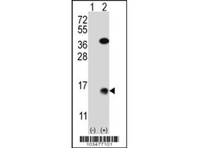 Xenopus SUMO2 Antibody (N-term)