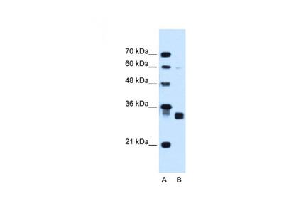 Carbonyl Reductase 1 antibody