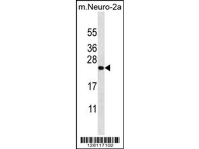 ZCRB1 Antibody (C-term)