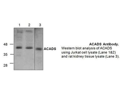 ACADS Antibody