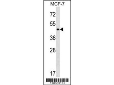 ZBTB12 Antibody (C-term)