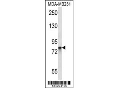 PADI2 Antibody (C-term)