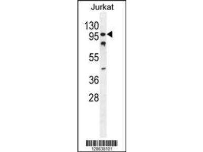 CWC22 Antibody (N-term)