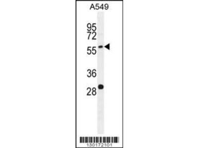 PALM3 Antibody (C-term)