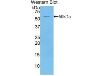 Polyclonal Antibody to 5'-Nucleotidase, Ecto (NT5E)