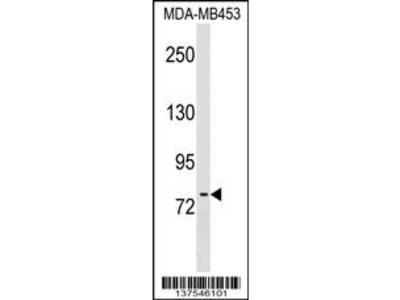 POMT2 Antibody (C-term)
