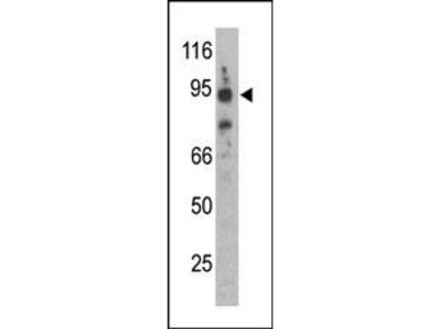 Synphilin-1 (SNCAIP) Antibody (C-term)