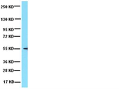 Anti-Tubulin Antibody, Detyrosinated