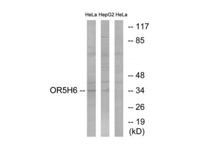 OR5H6 antibody