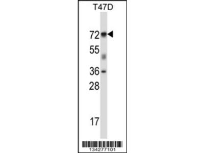 FOXK2 Antibody (N-term)